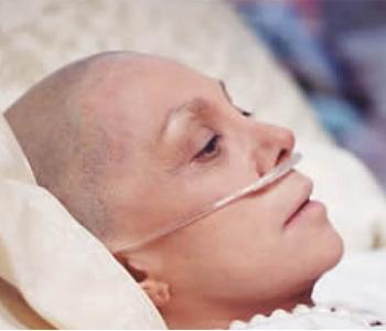 tác dụng phụ của hóa trị, xạ trị