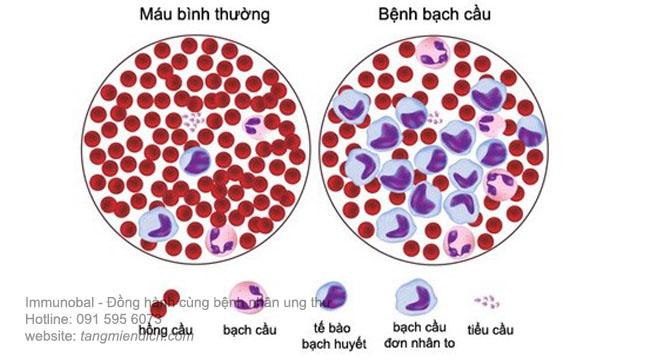 Bệnh ung thư máu có di truyền không