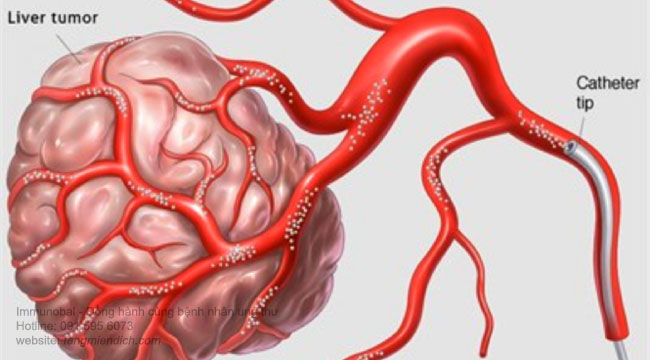 điều trị ung thư gan bằng phương pháp toce 01