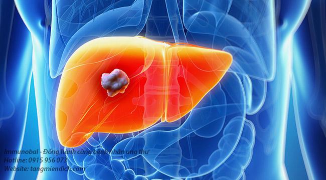 Ung thư gan giai đoạn đầu sống được bao lâu
