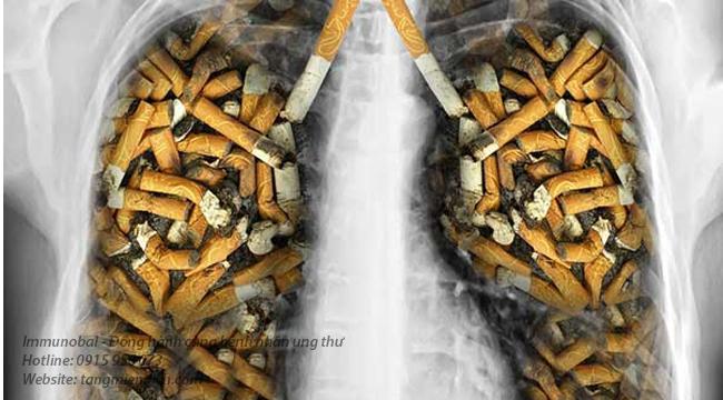 Ung thư phổi giai đoạn cuối kéo dài bao lâu
