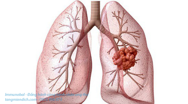 Ung thư phổi có lây qua đường hô hấp không