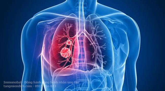 Ung thư phổi giai đoạn 3 sống được bao lâu
