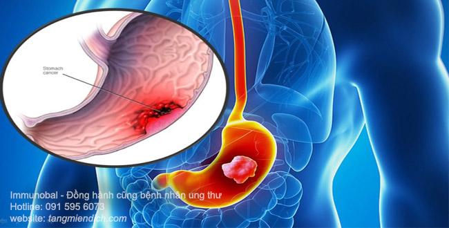 ung thư dạ dày giai đoạn cuối sống được bao lâu 01