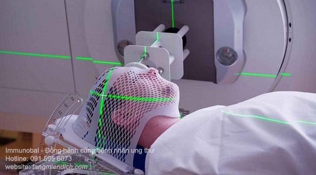xạ trị có ảnh hưởng đến người xung quanh không