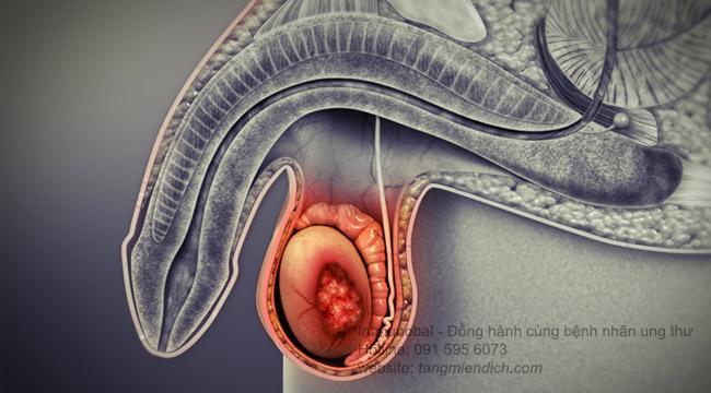 triệu chứng bệnh ung thư tinh hoàn