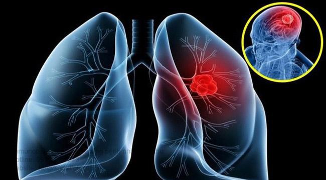 Thuốc giảm đau ung thư phổi giai đoạn cuối
