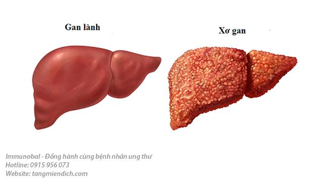 Ung thư gan giai đoạn đầu sống được bao lâuUng thư gan giai đoạn đầu sống được bao lâu