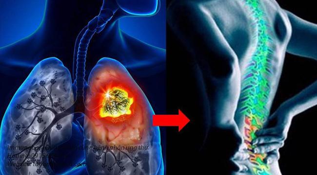 Ung thư phổi giai đoạn 3 có chữa được không