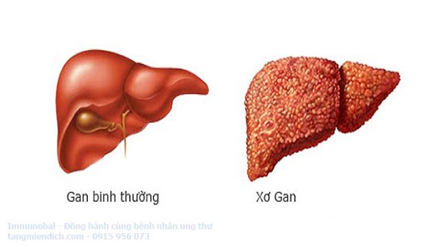 Biểu hiện của ung thư gan giai đoạn cuối