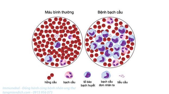 Liệu pháp miễn dịch ung thư máu
