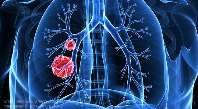 Triệu chứng ung thư phổi giai đoạn đầu