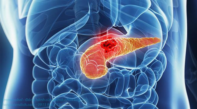 triệu chứng ung thư tuyến tụy