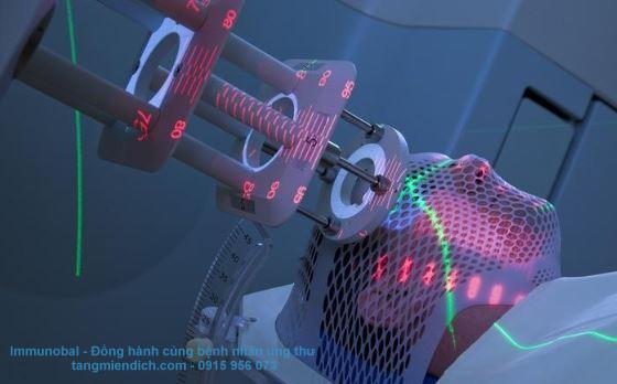 xạ trị có ảnh hưởng gì