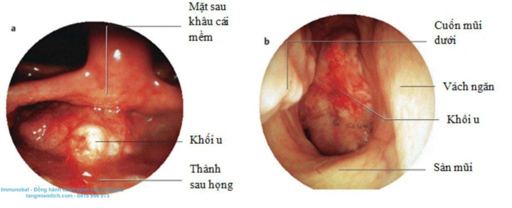 bệnh ung thư vòm họng