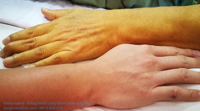 triệu chứng của bệnh ung thư tuyến tụy