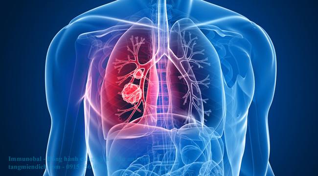 ung thư phổi di căn hạch trung thất