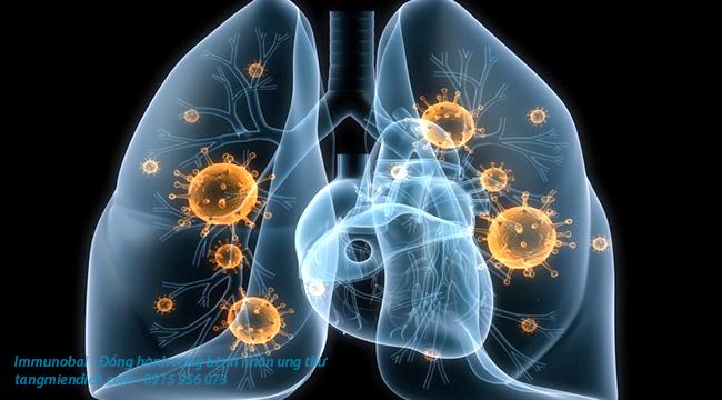 ung thư phổi không tế bào nhỏ là gì