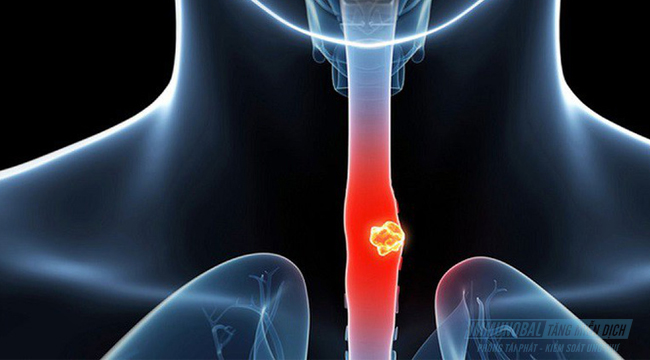 Ung thư thực quản giai đoạn 3