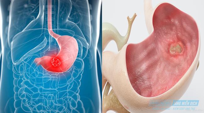 biểu hiện của ung thư dạ dày
