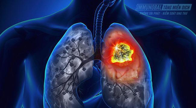 chữa ung thư phổi bằng thuốc nam
