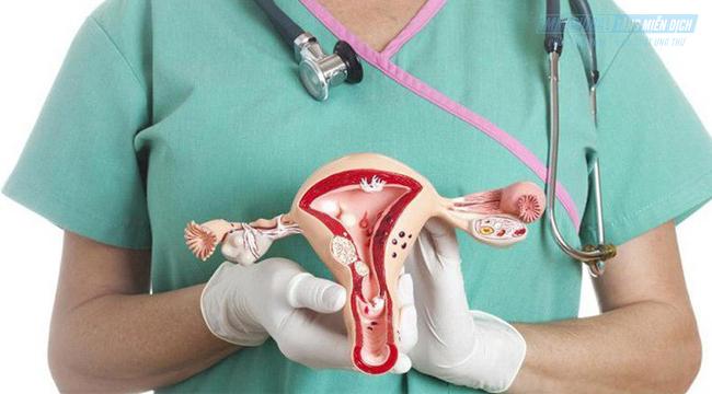 Ung thư buồng trứng giai đoạn 2