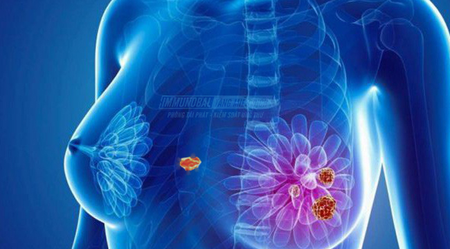 Ung thư vú di căn vào xương