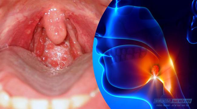 Đừng nhầm lẫn viêm họng hạt với ung thư vòm họng! - Immunobal