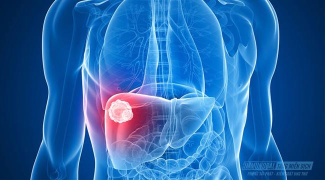 bệnh ung thư gan giai đoạn 2