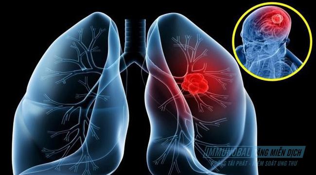 điều trị ung thư phổi di căn não
