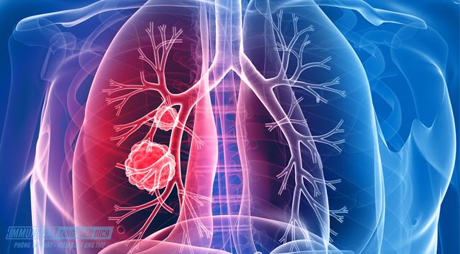ung thư phổi di căn có lây không