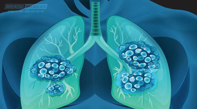 Ung thư phổi tế bào nhỏ là gì