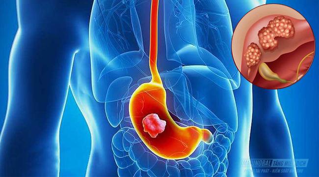 Ung thư dạ dày di căn sang gan