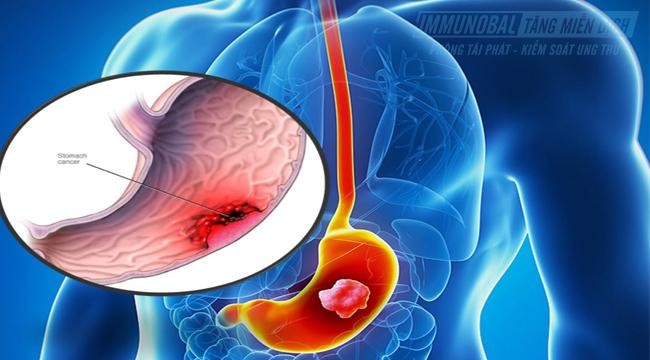 ung thư dạ dày giai đoạn 4